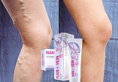 Nanovein krema za krčne žile, kje kupiti, uporaba, Slovenija